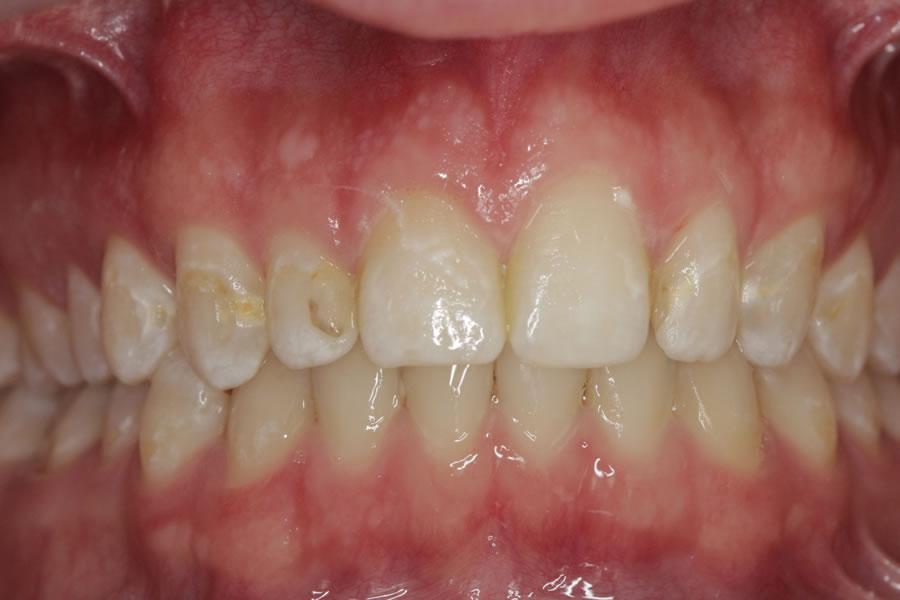 Depoimento - Centro de Reabilitação Oral Menezes Alves - Dissilicato de Lítio