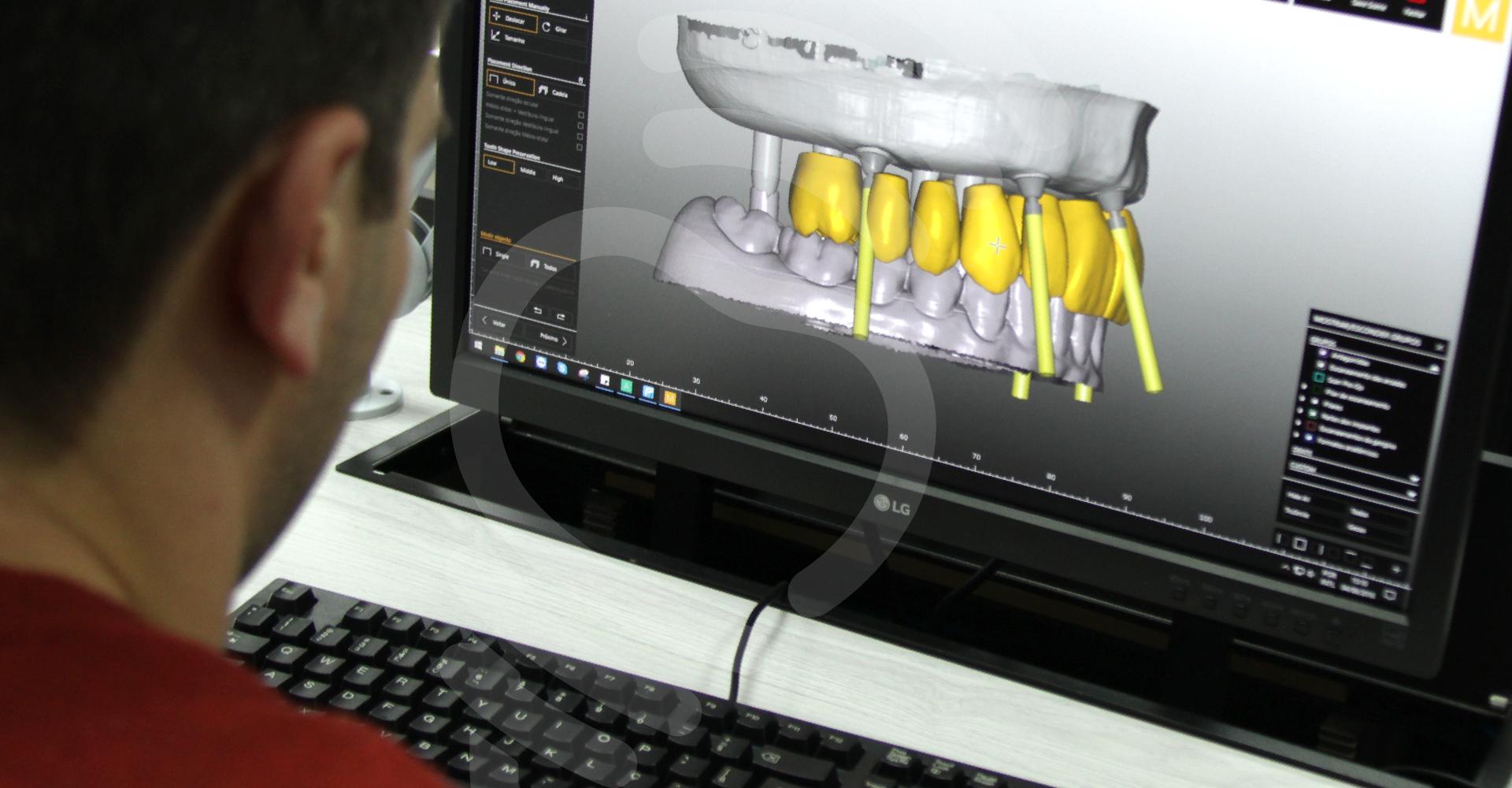 Como transformar definitivamente a sua carreira profissional em prótese odontológica