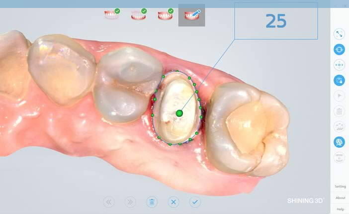 Scanner Intraoral Shinning 3D - Software
